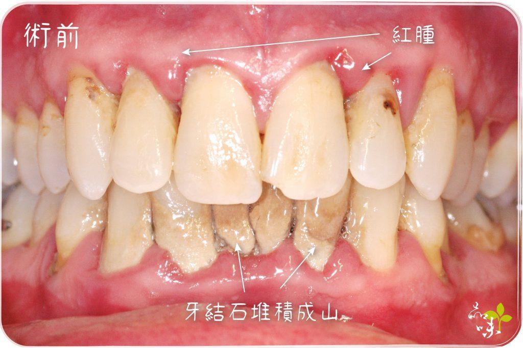 牙周病症狀