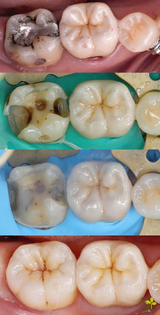 補牙, BPR