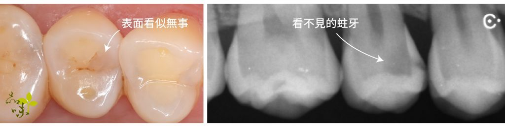 caries X-ray