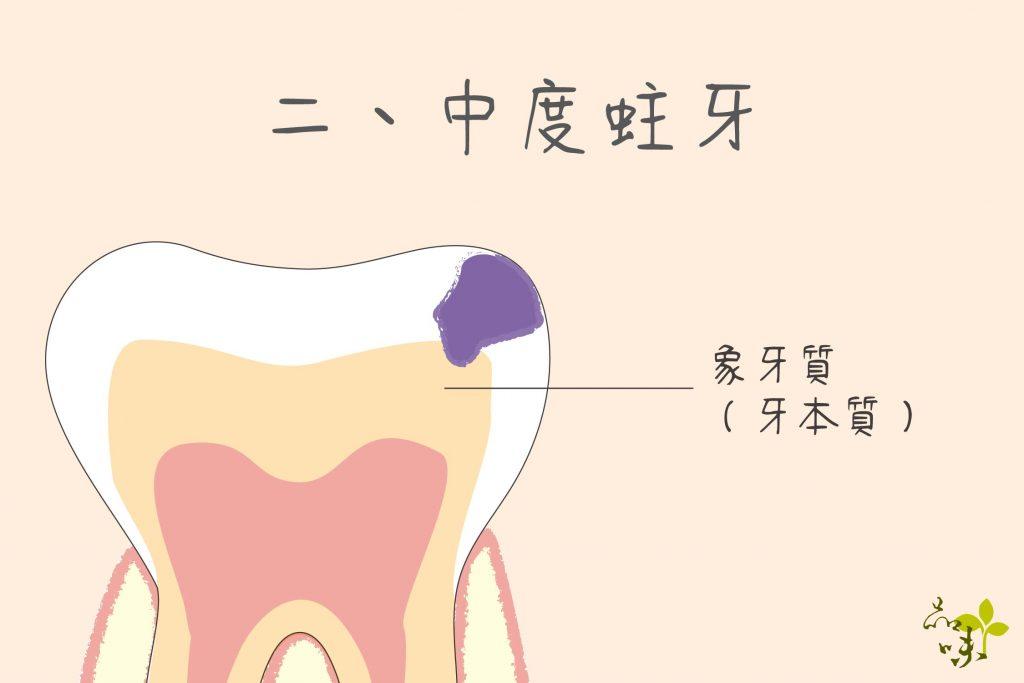 乳臼齒蛀牙