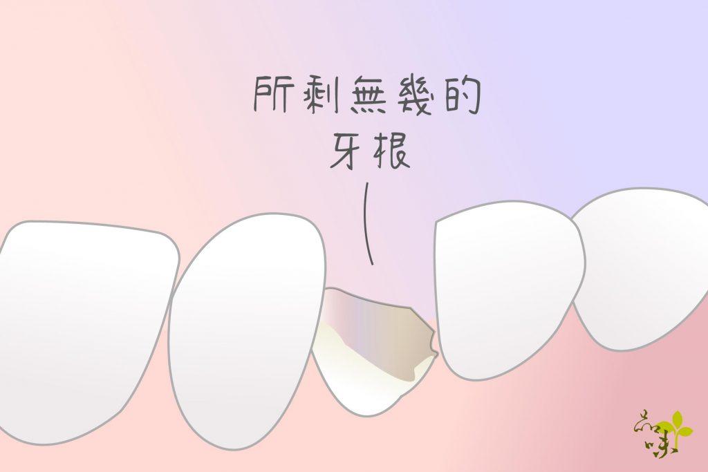所剩無幾的牙根,還有機會用 牙冠增長術 保存下來
