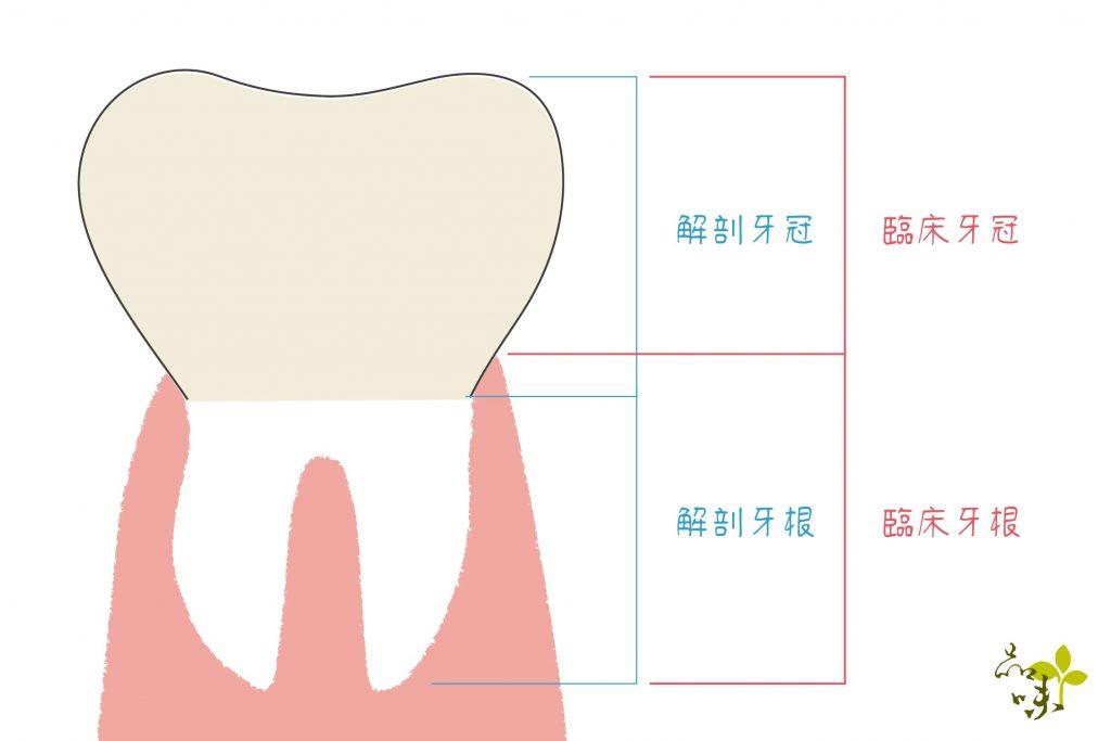 臨床牙冠和解剖牙冠的差別示意圖