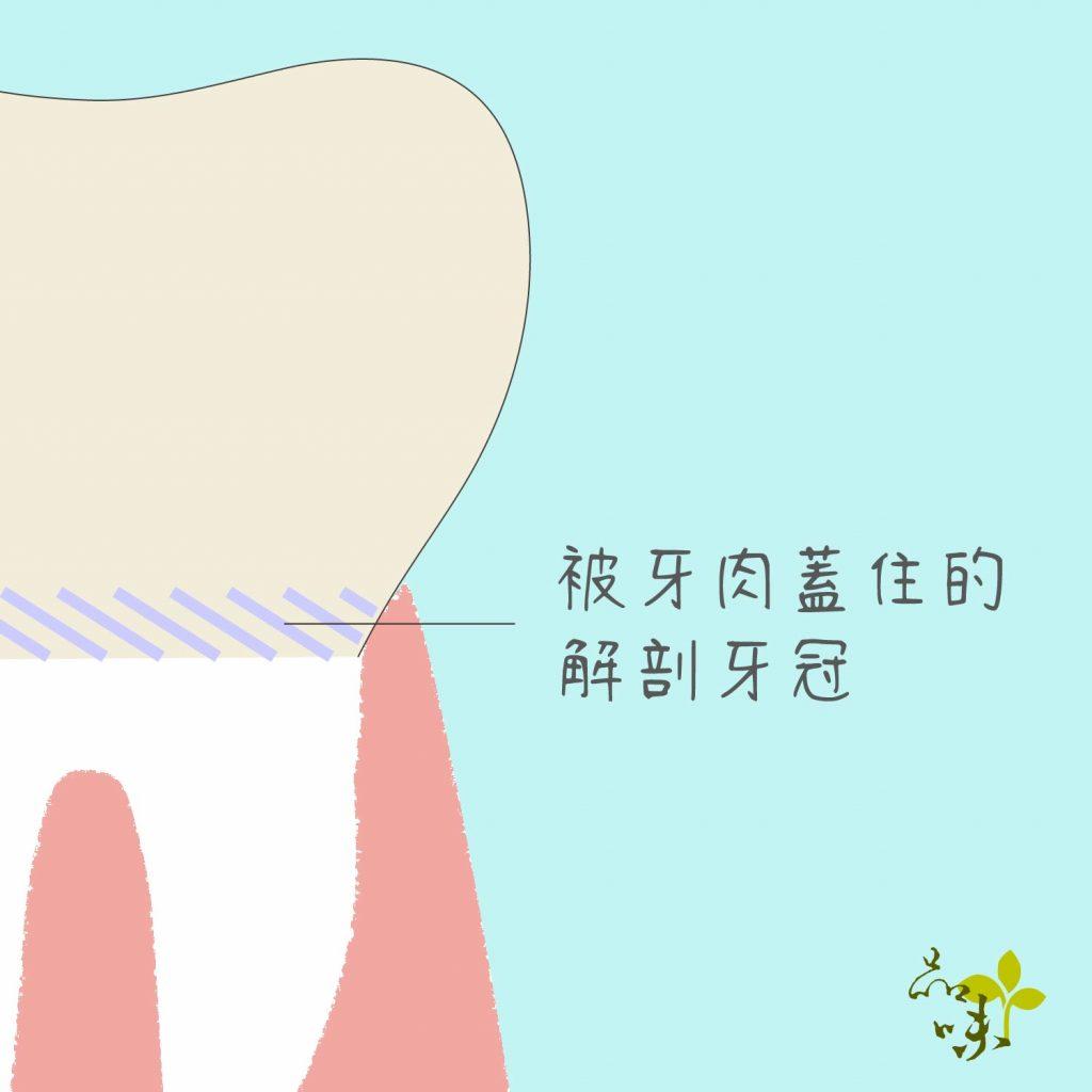 解剖牙冠被牙肉蓋住的部分