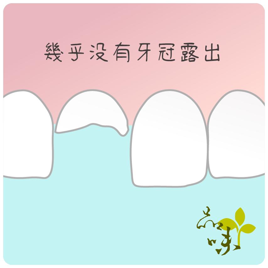 殘留牙根幾乎沒有牙冠露出的情況