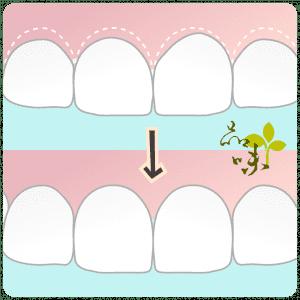 因治療需求移除部分齒槽骨