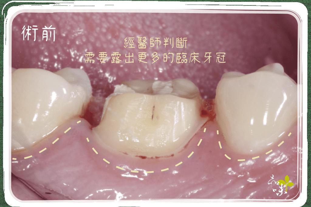 牙冠增長術 術前臨床牙冠露不夠多