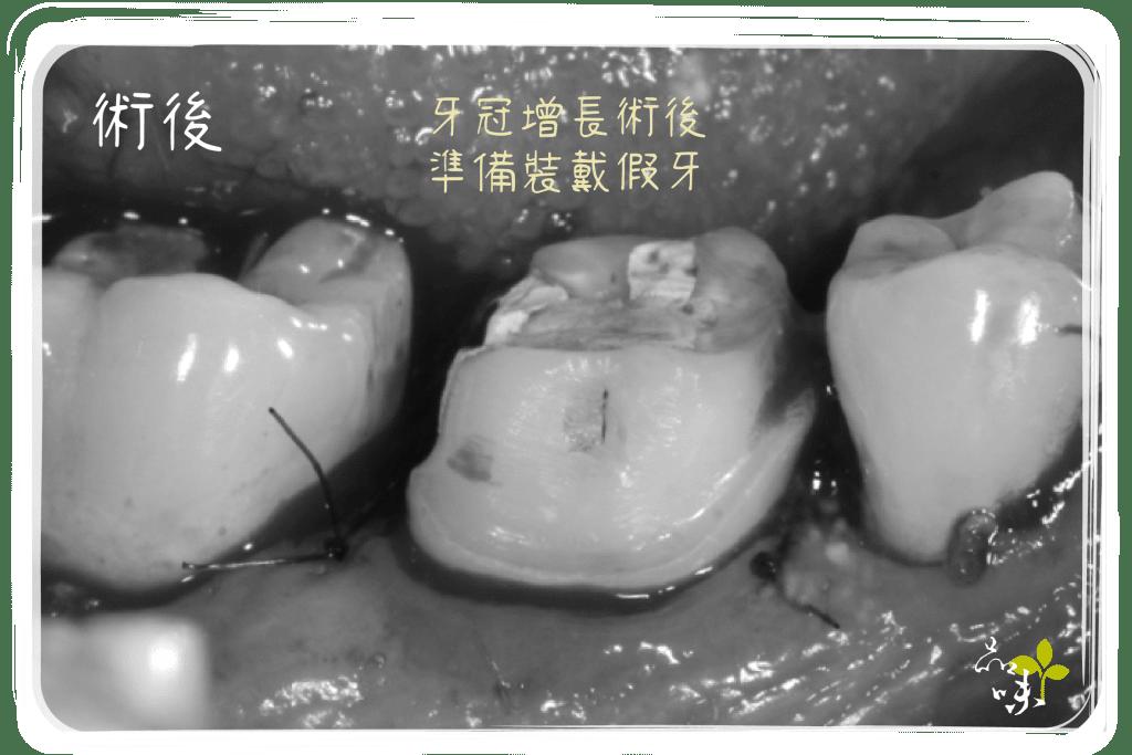 牙冠增長術 後增加了臨床牙冠的高度