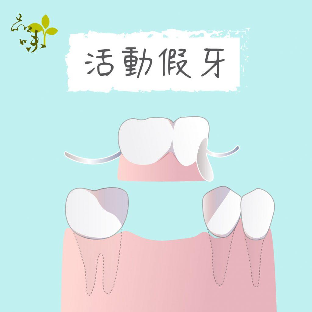 活動假牙是可拆卸的假牙,需拿下清潔並定期保養。