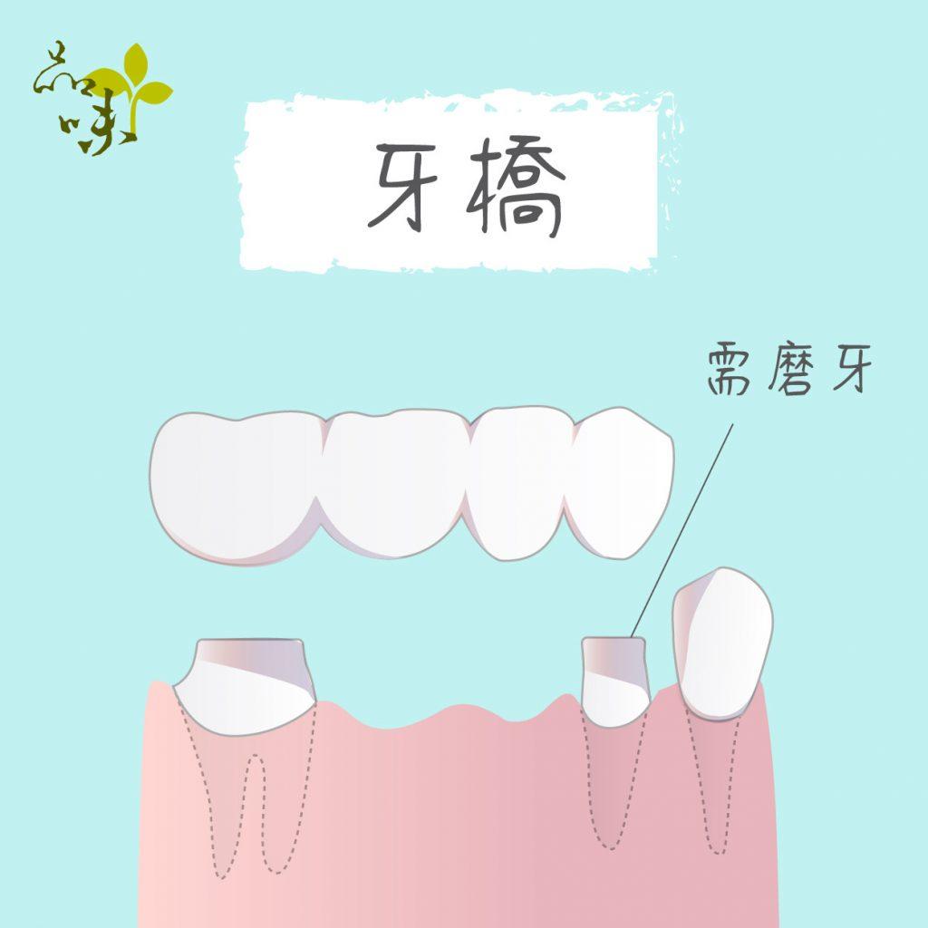 牙橋須修磨左右兩邊的牙齒,利用兩邊牙齒作為支撐,在中間搭建牙橋。