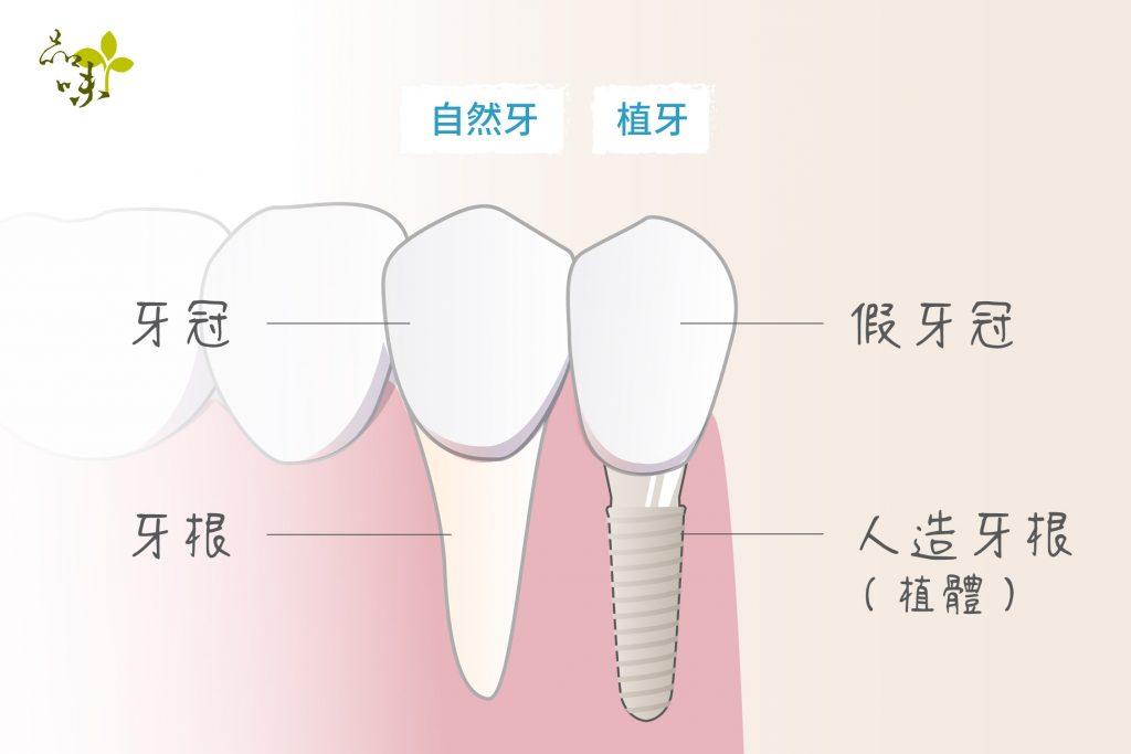 人造牙根(植體)與牙冠代替自然牙齒