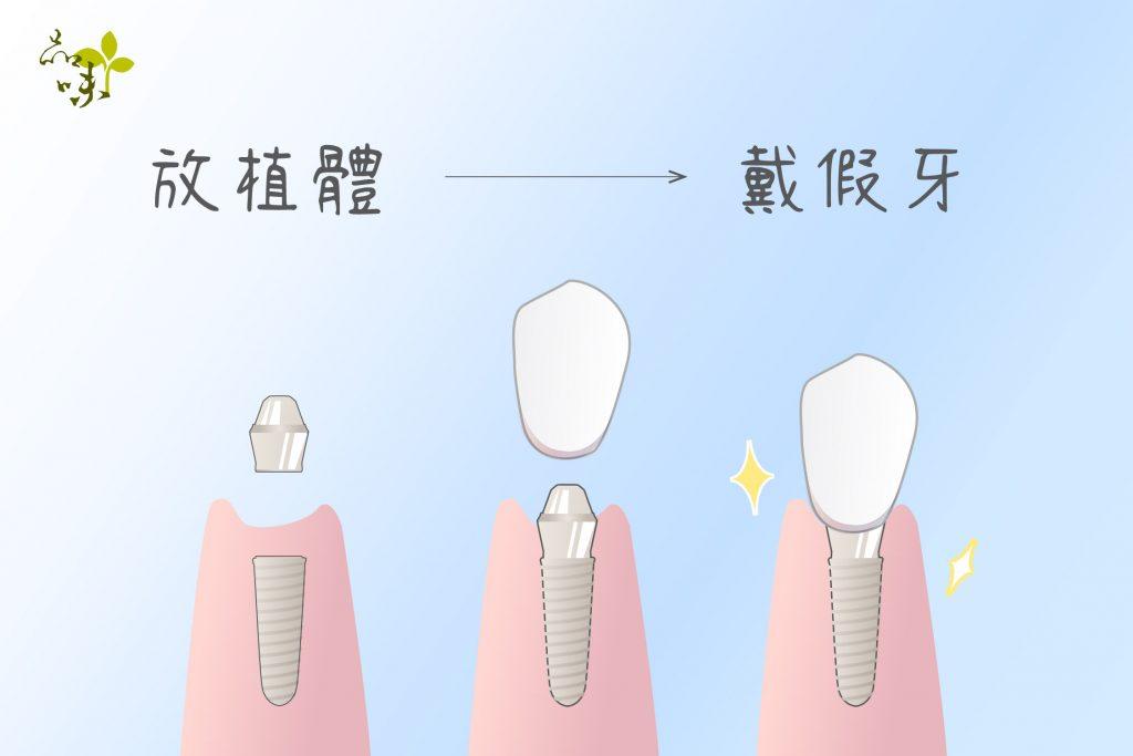 植牙手術先將顎骨修整成可放置的形狀,再放入植體,最後鎖上牙冠