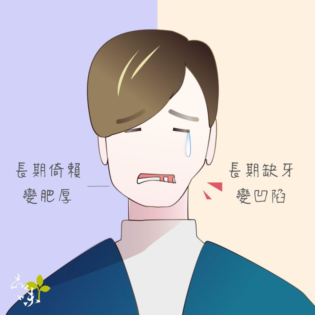 長期缺牙導致臉型凹陷