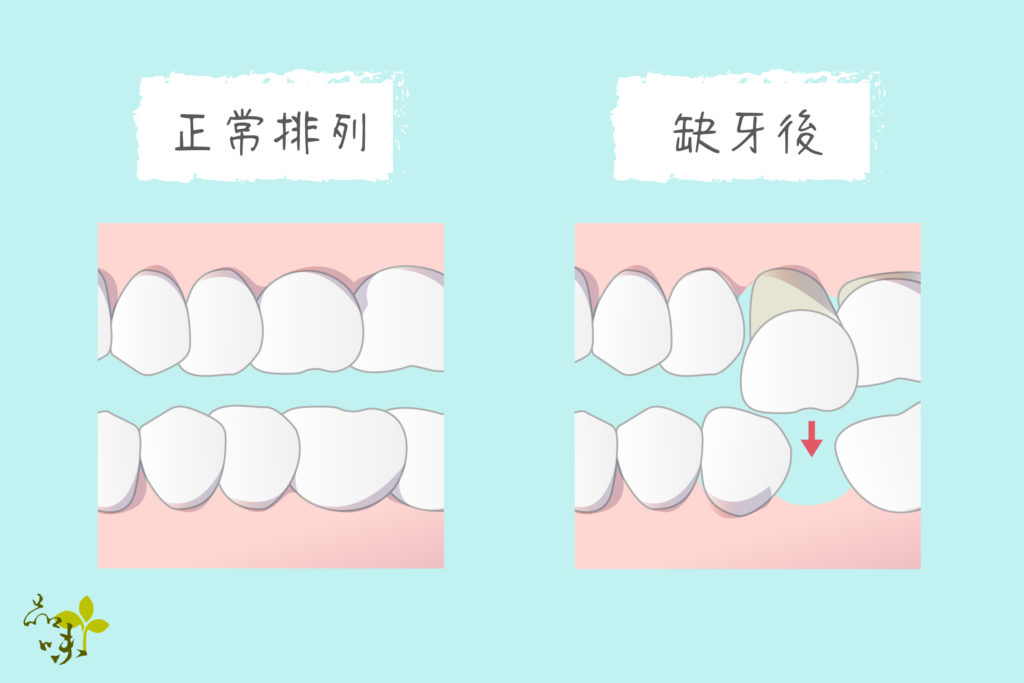 缺牙後導致對咬牙掉落
