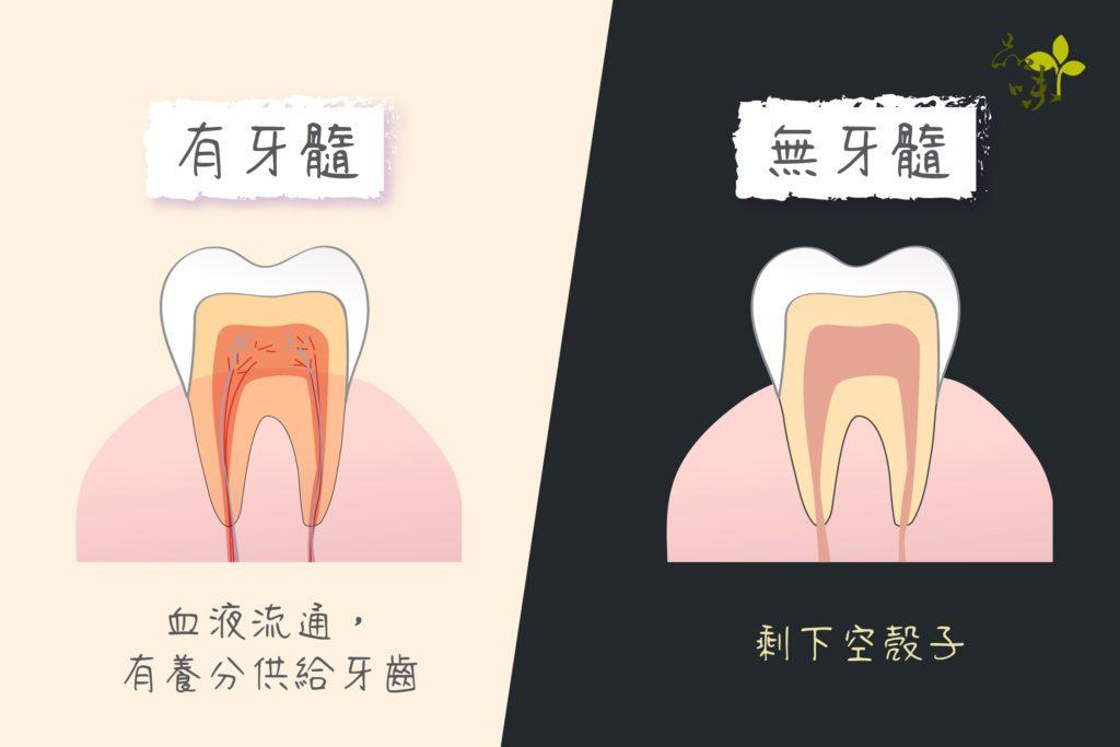 有牙髓的牙齒血液流通有養分