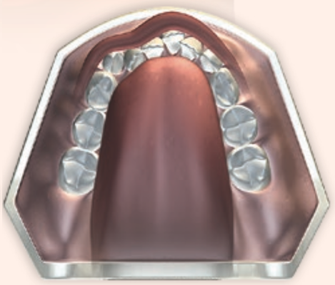 下排門牙後縮及牙弓窄小