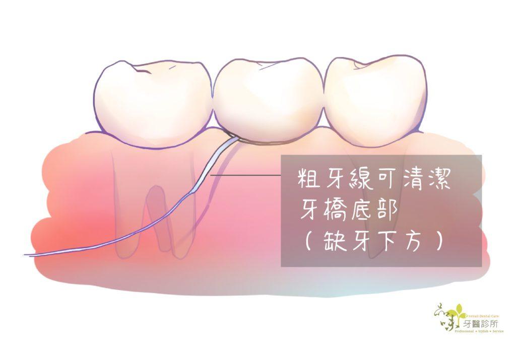 粗牙線可以清潔牙橋底部
