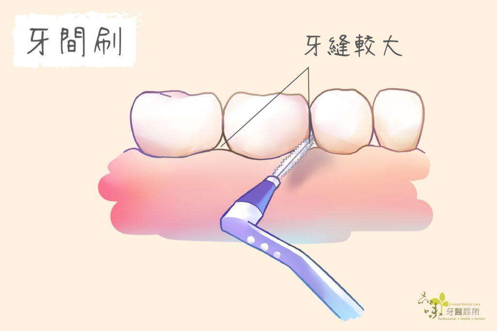 牙間刷適合牙縫較大的人