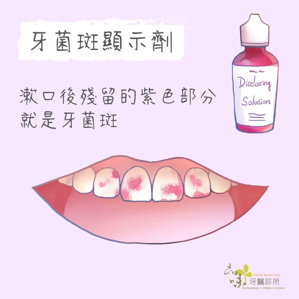 牙齒清潔 可用牙菌斑顯示劑漱口來檢查紫色殘留的部分就是沒刷乾淨的牙菌斑