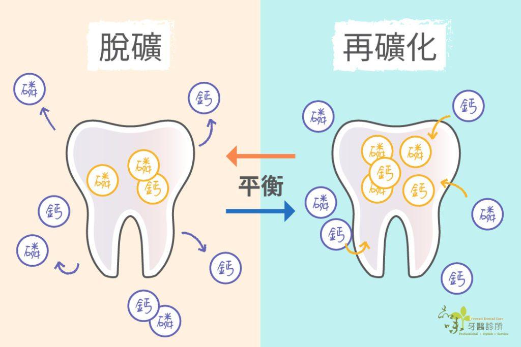 牙齒蛀牙 脫礦化 再礦化