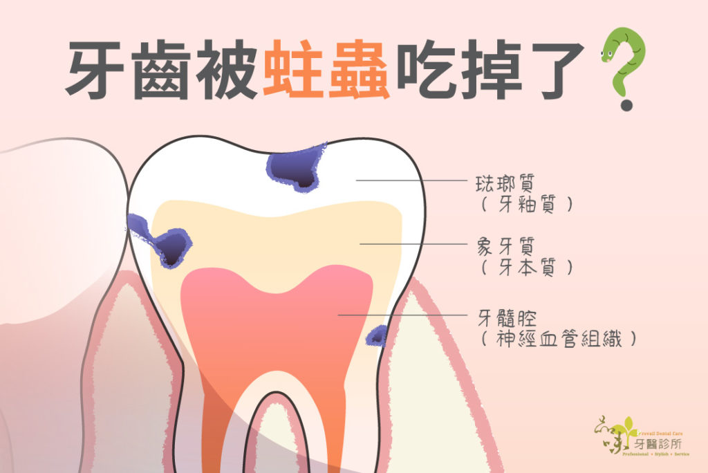 蛀牙蟲吃到珐瑯質和牙本質