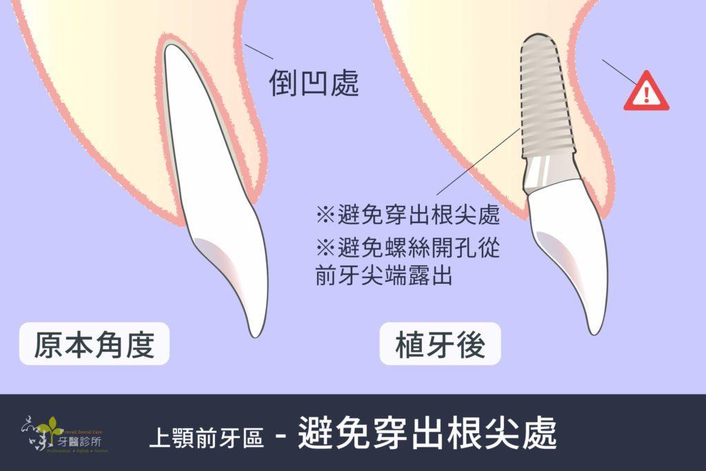 真牙和植牙的假牙在牙齦倒凹處的對比圖