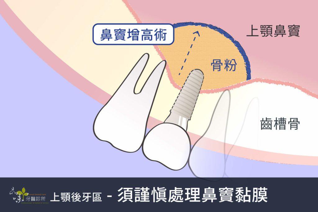 放入骨粉做鼻竇增高術的圖