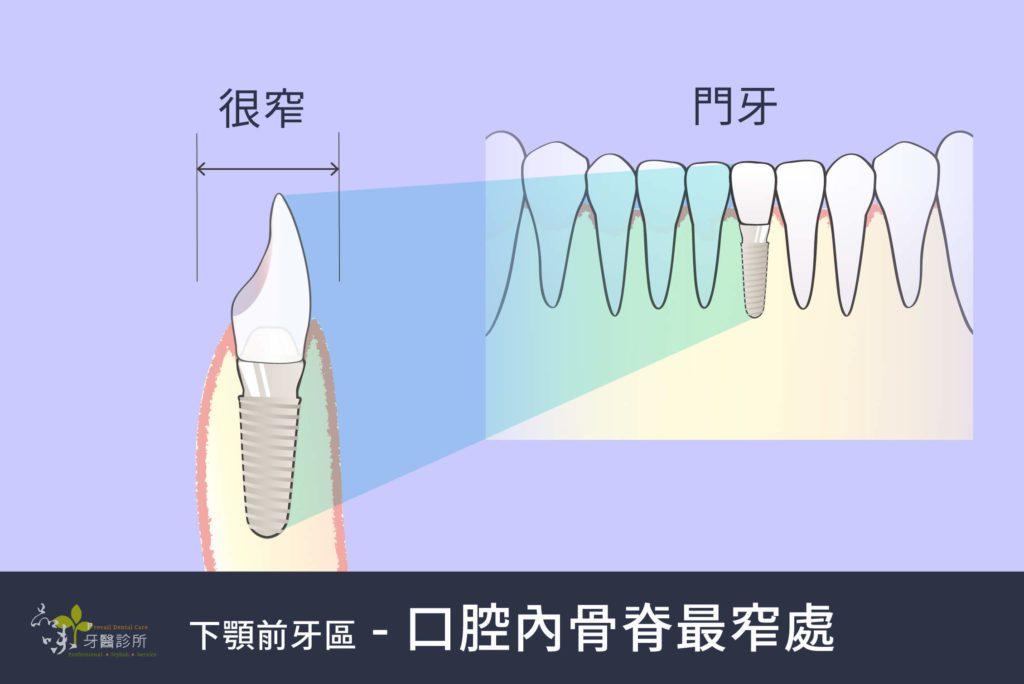 側看門牙的齒槽骨很窄