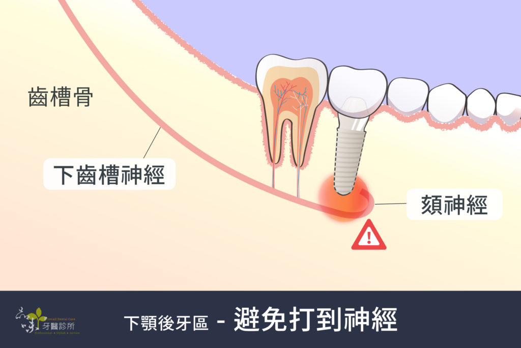 植牙的植體避免傷到齒槽骨裡的下齒槽神經和頦神經