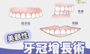 美觀性牙冠增長術