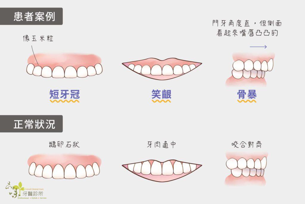短牙冠笑齦骨暴改善後的樣子