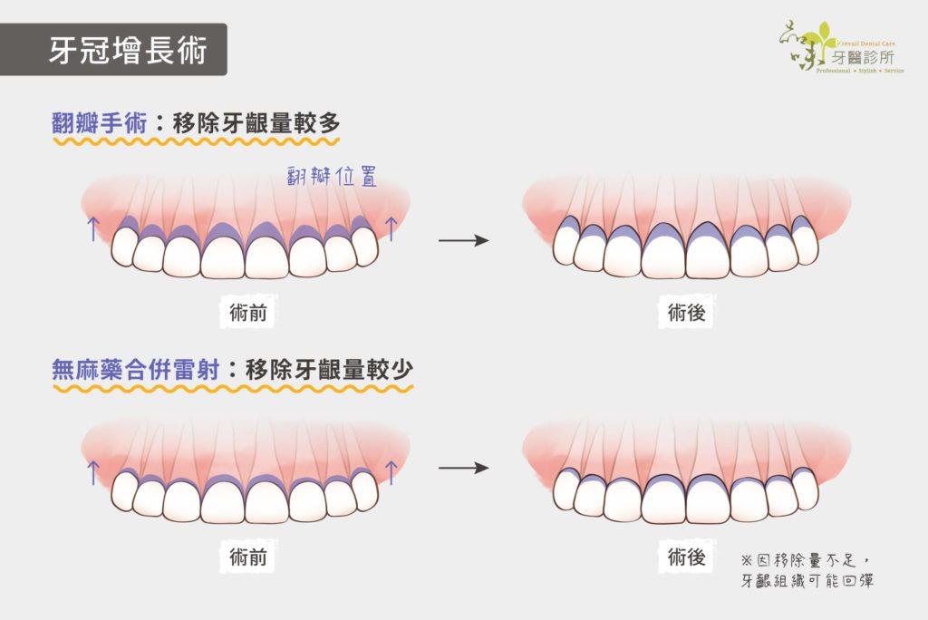 移除牙齦量較多和較少的手術圖