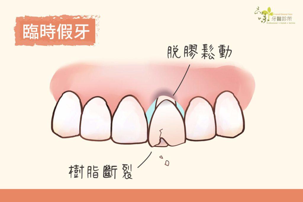 臨時假牙為樹脂材質可能會鬆脫斷裂