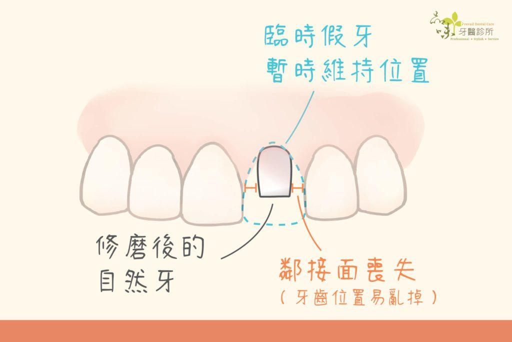 修磨後的牙齒形狀較小,無法與鄰牙相黏容易跑位
