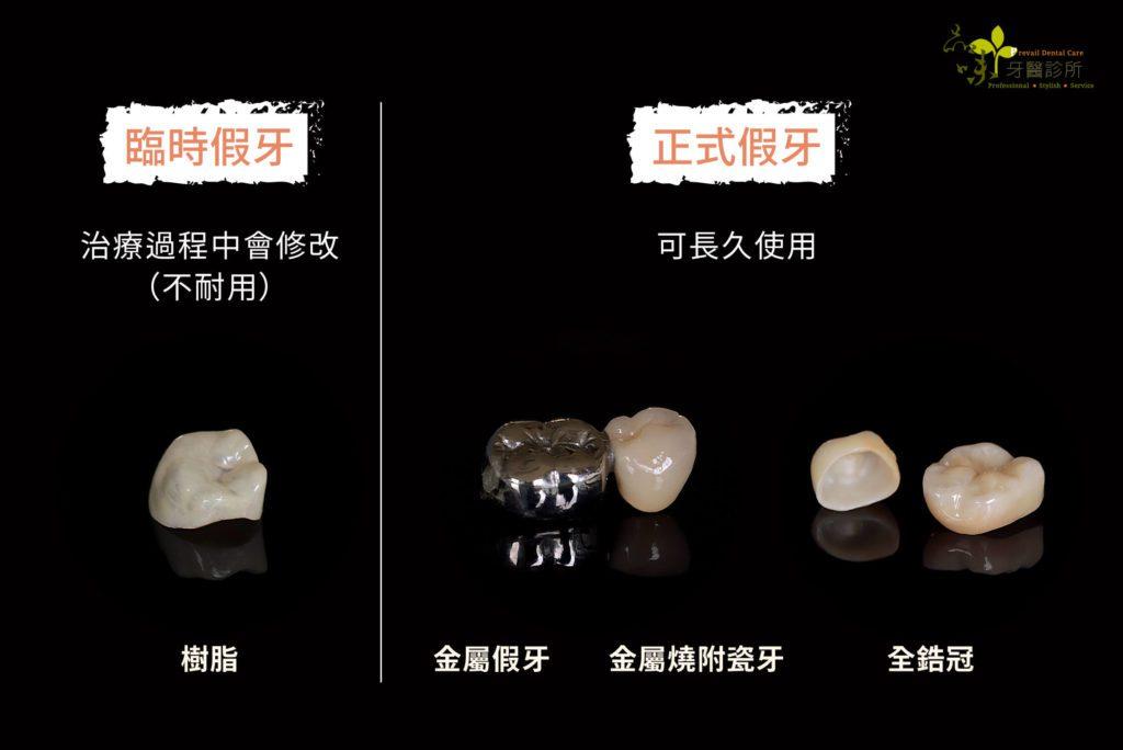 四種不同材質的假牙