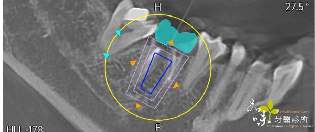 藍光導航植牙的螢幕畫面