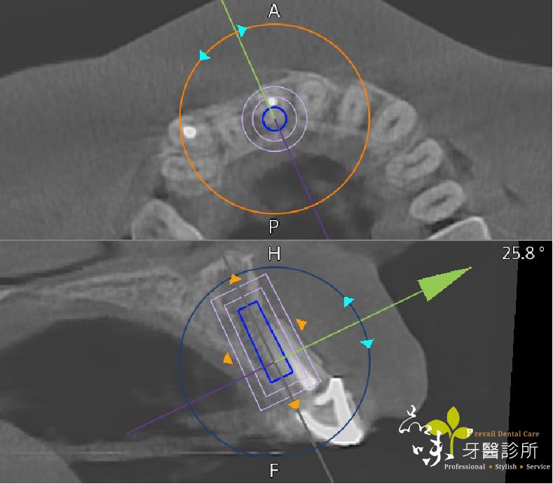 藍光導航植上顎前牙的螢幕即時投影