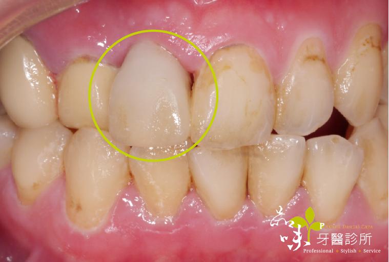 兩排牙齒沒有缺牙