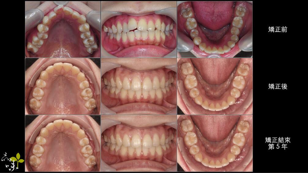 矯正牙齒五年後回診照片