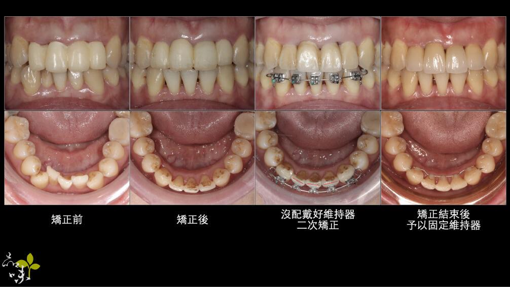 牙齒校正後隨時間變化的口腔圖片