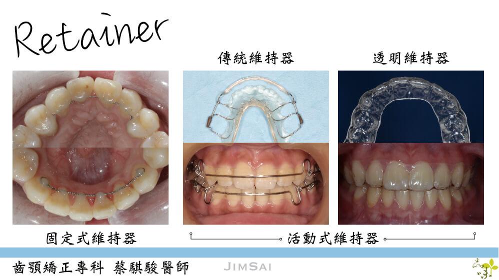 三種不同維持器戴在牙齒上的樣子