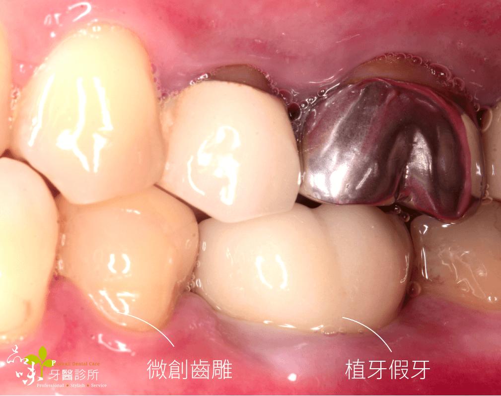 即拔即植牙術後側面咬合照片
