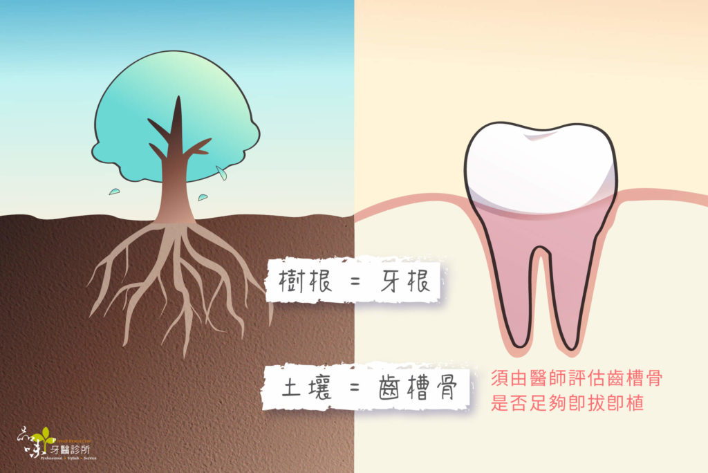 牙齒與齒槽骨與大樹在土壤裡的對比