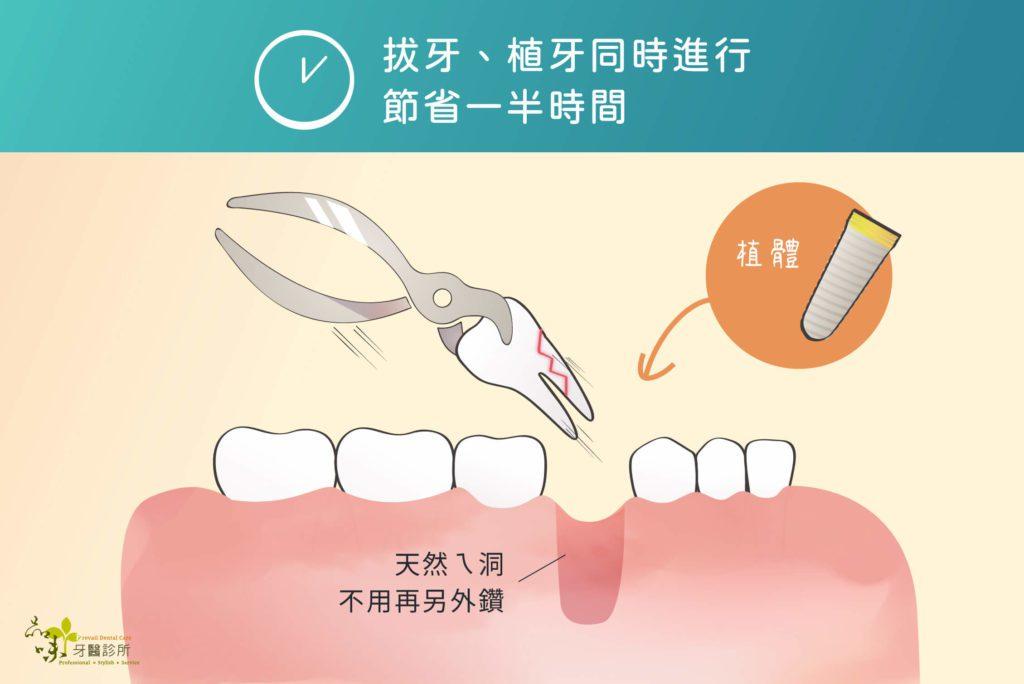 天然ㄟ洞不用另外鑽植牙洞