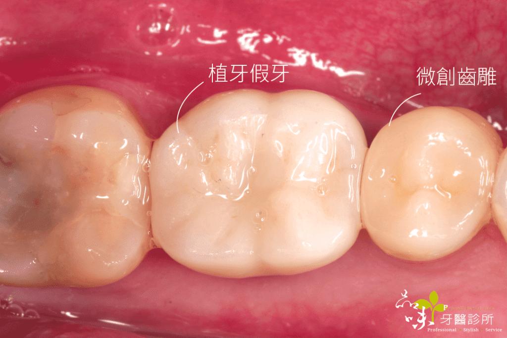 植牙假牙裝上窩洞後俯瞰圖