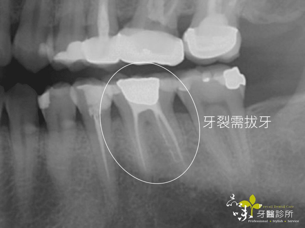 臼齒即拔即植牙術前X光