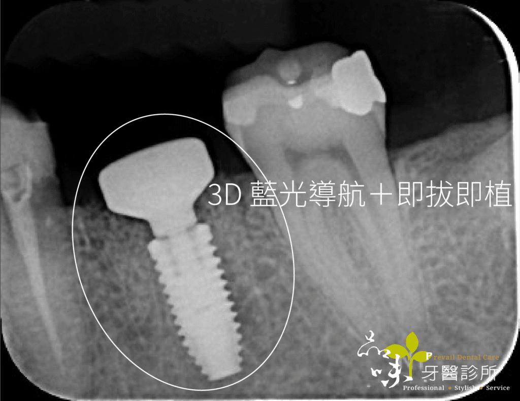 藍光導航植牙術後