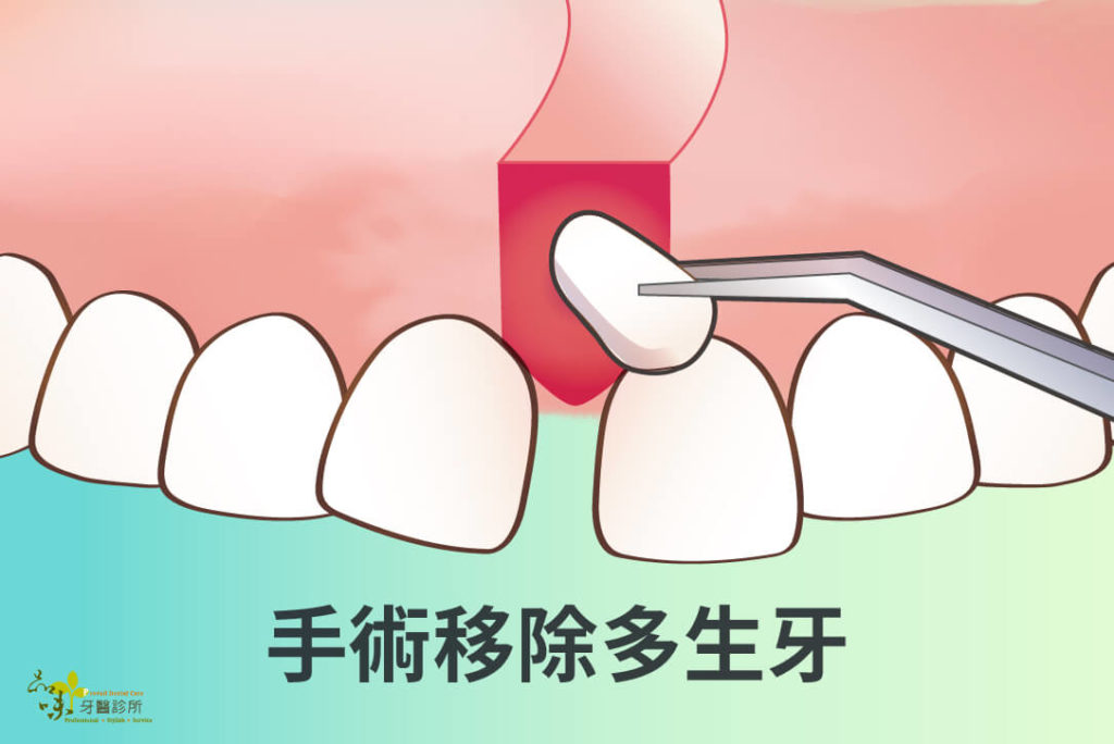 手術移除多生牙