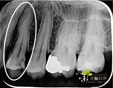 第一小臼齒活髓治療X光術前