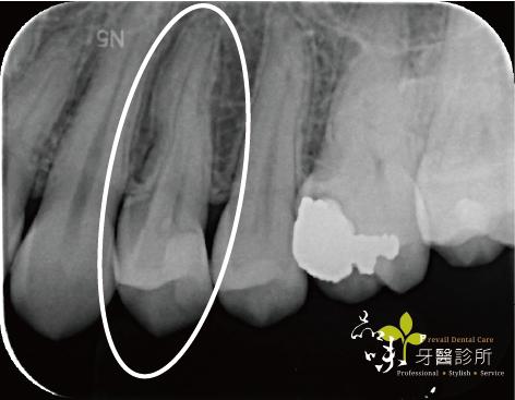 第一小臼齒活髓治療X光術後