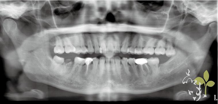 術前全口X光